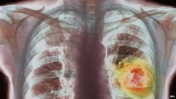 Lung cancer therapy is 'milestone'