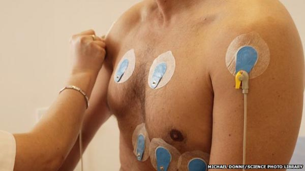 Heart screens 'needed for athletes'