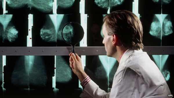 Drug 'may slow breast cancer growth'