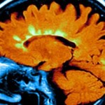 Low vitamin-D genes linked to MS