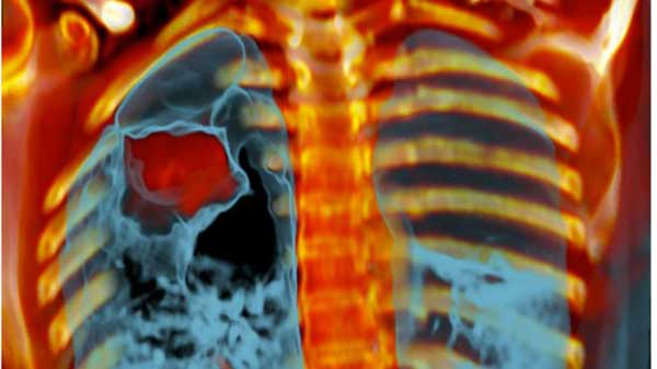 Cancer diagnosis 'within four weeks'