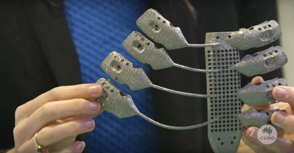 Cancer patient receives world's first 3-D printed ribs and sternum
