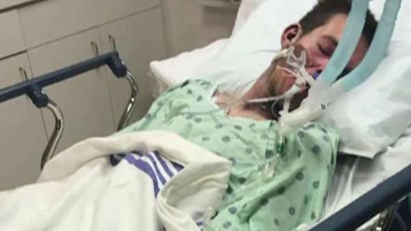 Man in coma after E-Cigarette blows up in his face