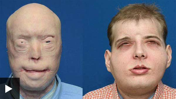 Firefighter receives historic face transplant