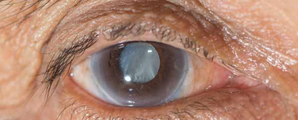 Scientists develops an eye drop that can dissolve cataracts