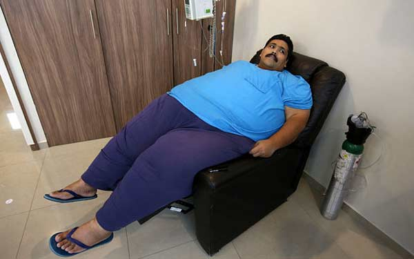 World's most obese man dies after weight-loss surgery