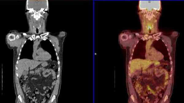 Cancer scans 'reduce risky operations'