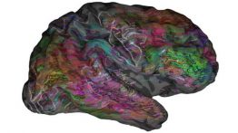 Brain map to help decode inner thoughts