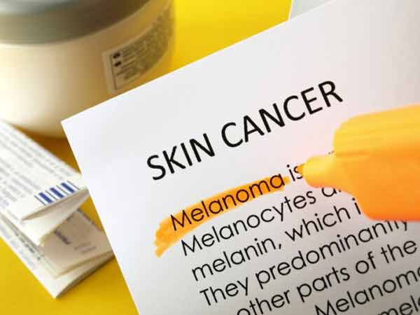 Anti-oxidants more effective for elderly with skin cancer: Study