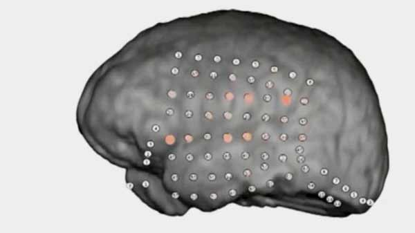 Brain's party noise filter revealed by recordings