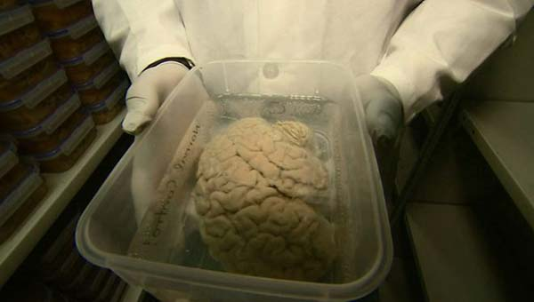 Donate your brain, scientists urge