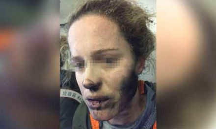 'Exploding' headphones burn woman on flight